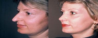 chirurgie esthetique nez tunisie avant apres
