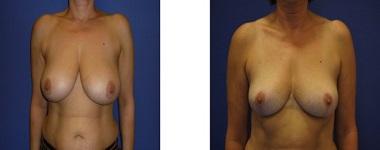 correction hypertrophie mammaire tunisie